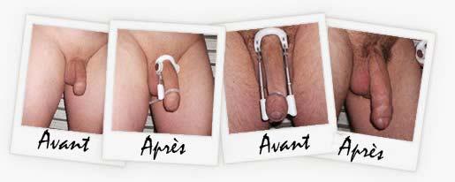comment fonctionne un dispositif médical de tracion penienne