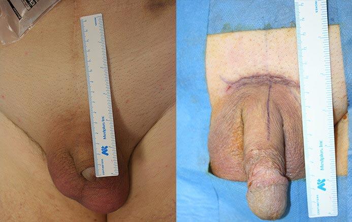 agrandissement penien chirurgie