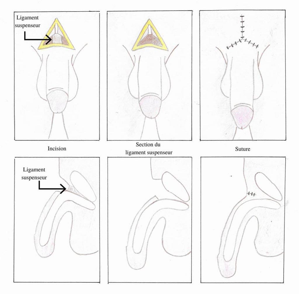 operation agrandissement du penis